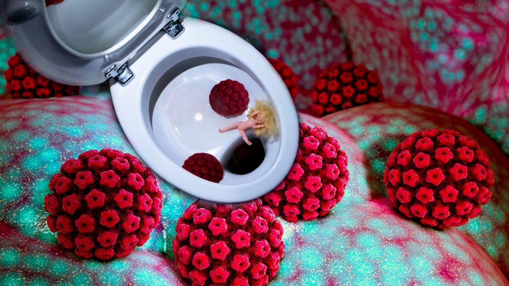 DieVerpeilte HPV 1